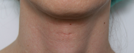 Trach shave scar